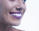 ¿Cómo funciona el sistema de Ortodoncia invisible INVISALIGN en clínica dental Guisasola de Valencia?