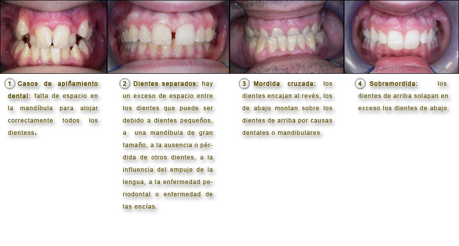 dientes-apinamentos-separados-cruzada-sobremordida