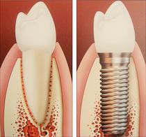Dónde hacer un implante en valencia capital
