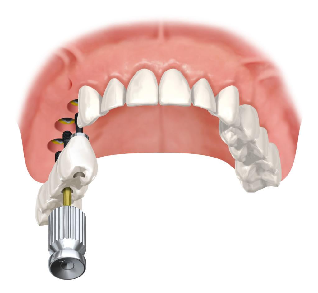 Esquemas oclusales en prótesis sobre implantes. Parte I