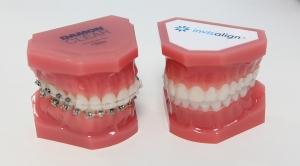 buen ortodoncista en Valencia