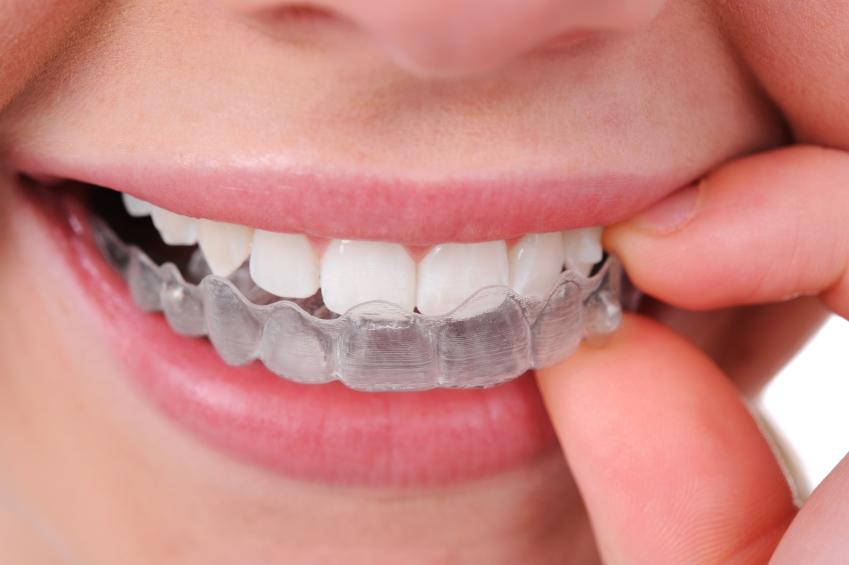 Ortodoncia invisible: una alternativa para corregir las malposiciones dentarias en adultos
