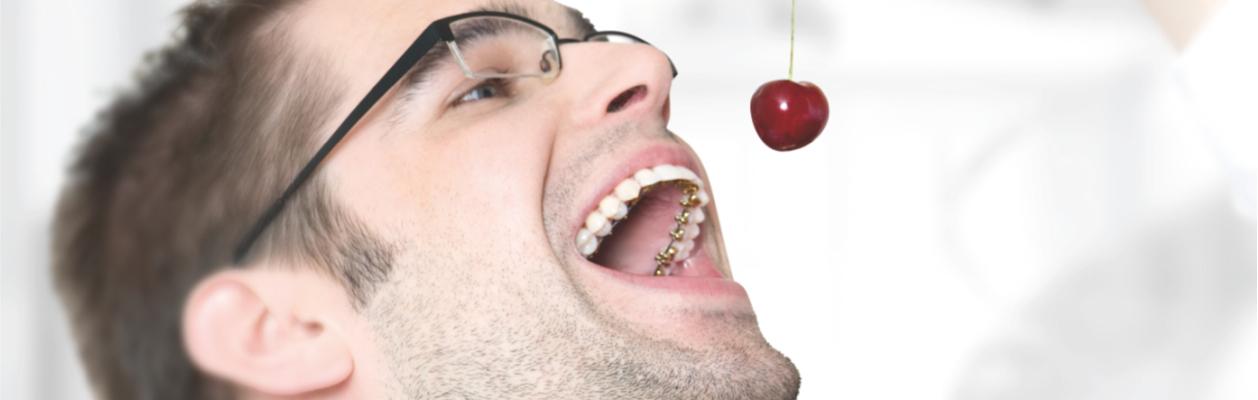 Brackets de autoligado pasivo (sistema DAMON) vs ortodoncia invisible INVISALIGN y ortodoncia lingual: ventajas e inconvenientes en ortodoncia.