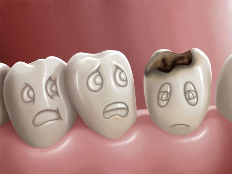 Problemas dentales más frecuentes: causas y soluciones
