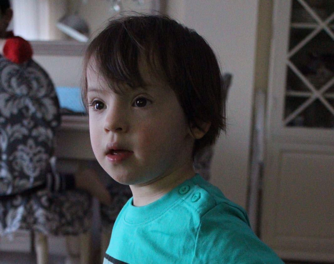 Cuidados dentales en niños con Síndrome de Down