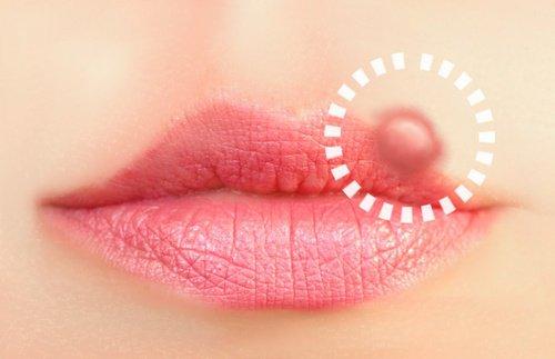 Soluciones naturales para los herpes orales