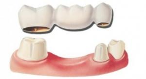 Colocación-puente-dental-350x190