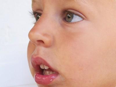 Respiración bucal: principales signos y complicaciones
