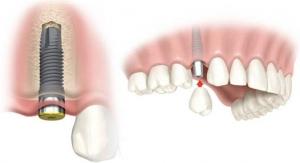 colocación-diente1