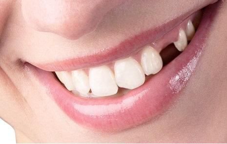 La pérdida de dientes y la importancia de restaurarlos