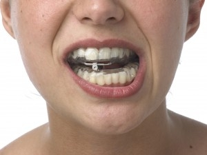 Dispositivo_de_avance_mandibular-300x225