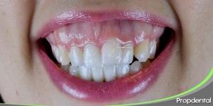 como-solucionar-la-sonrisa-gingival