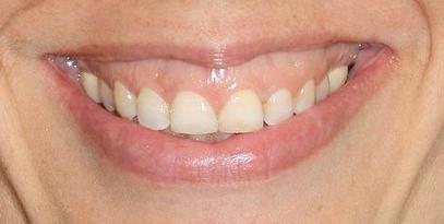 Sonrisa gingival: posibles soluciones